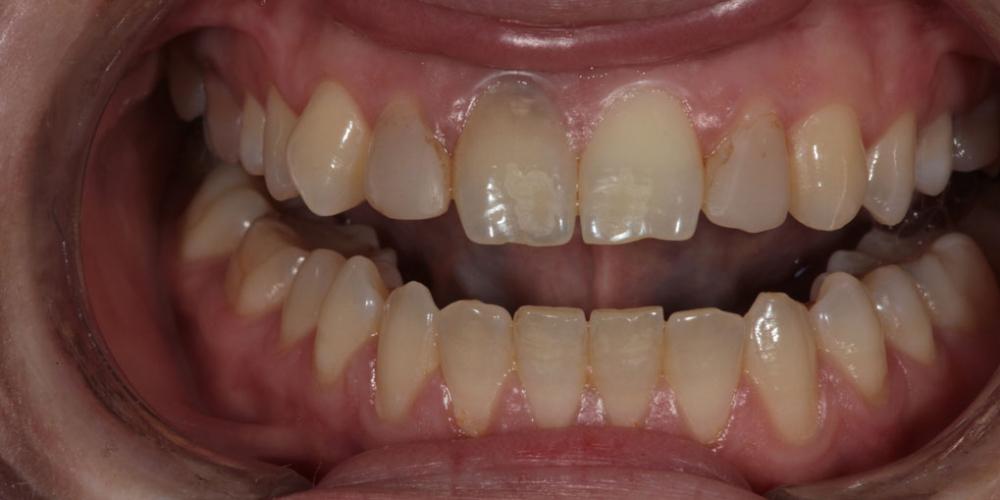 Виниры для придания эстетики передним зубам - фото №1