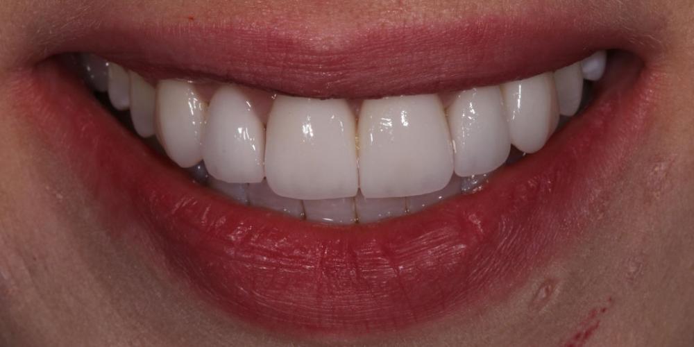 Виниры для придания эстетики передним зубам - фото №2