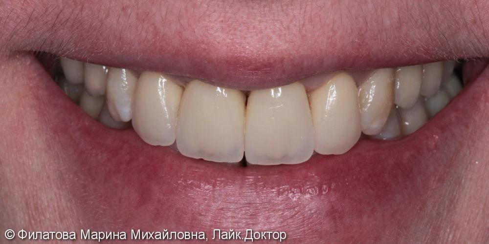 4 керамических винира Емах на верхней челюсти, до и после - фото №2
