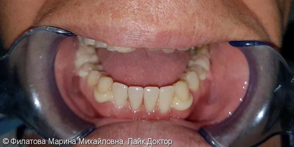 Съемный протез Квадротти, восстановление зубного ряда нижней челюсти - фото №2