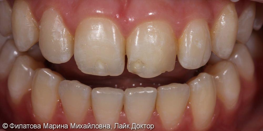 Восстановление зубов композитным материалом, до и после - фото №1