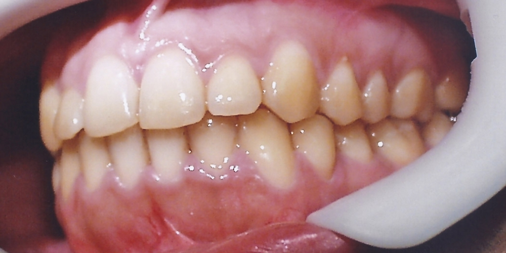 Мезиальный перекрестный прикус со смещением челюсти влево - фото №2