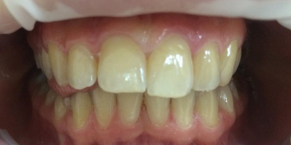 Наращивание переднего зуба - фото №1