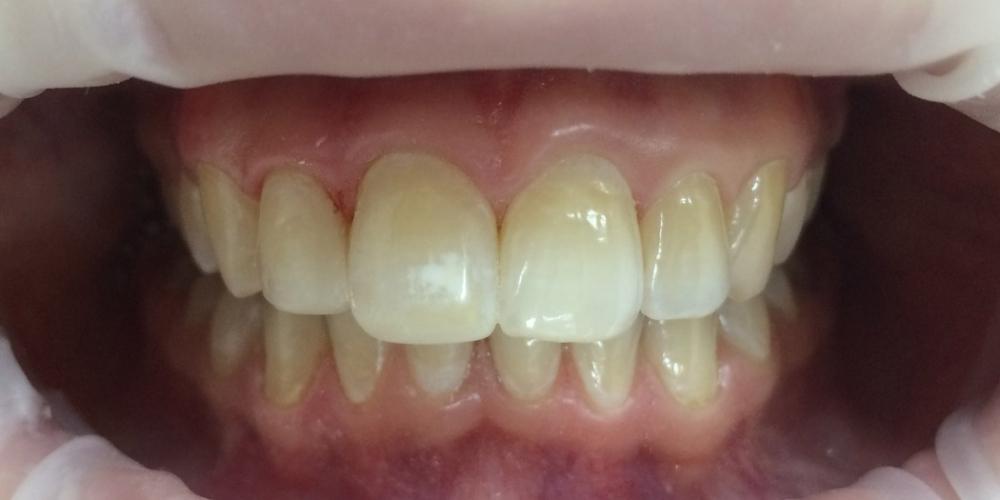 Наращивание переднего зуба - фото №2