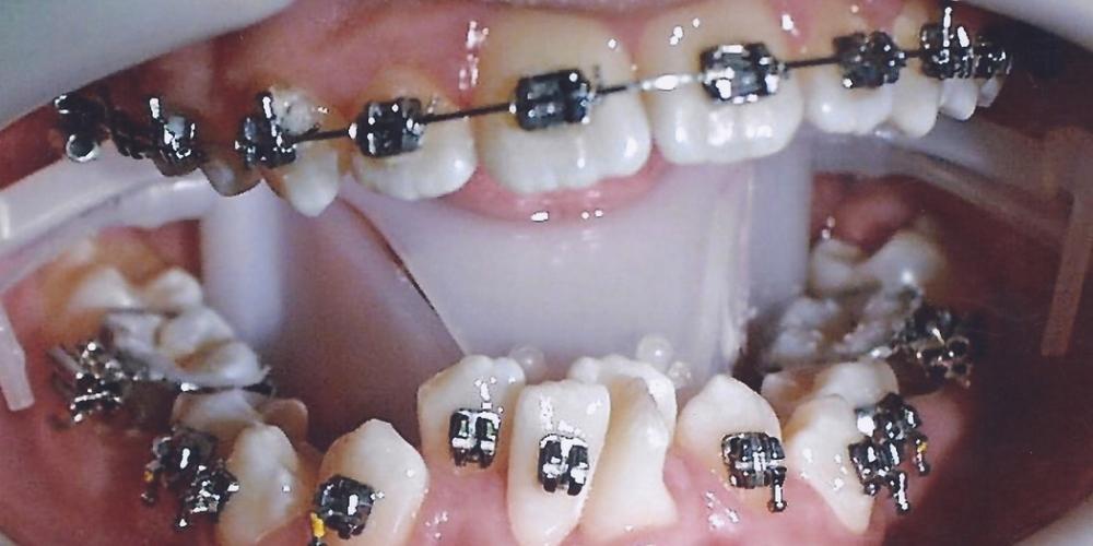 Результат исправления скрученности зубов металлическими брекетами - фото №1