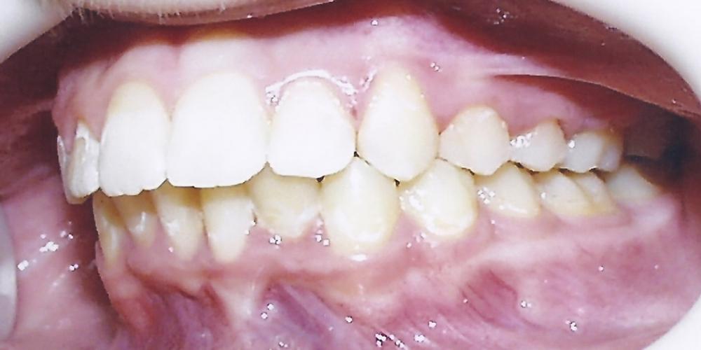 Результат исправления скрученности зубов металлическими брекетами - фото №2
