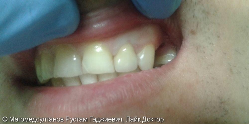 Установка одиночной коронки на 22 зуб, до и после - фото №2