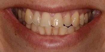 Тотальная реконструкция улыбки керамическими реставрациями - фото №1
