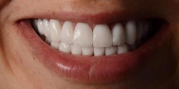 Тотальная реконструкция улыбки керамическими реставрациями - фото №2