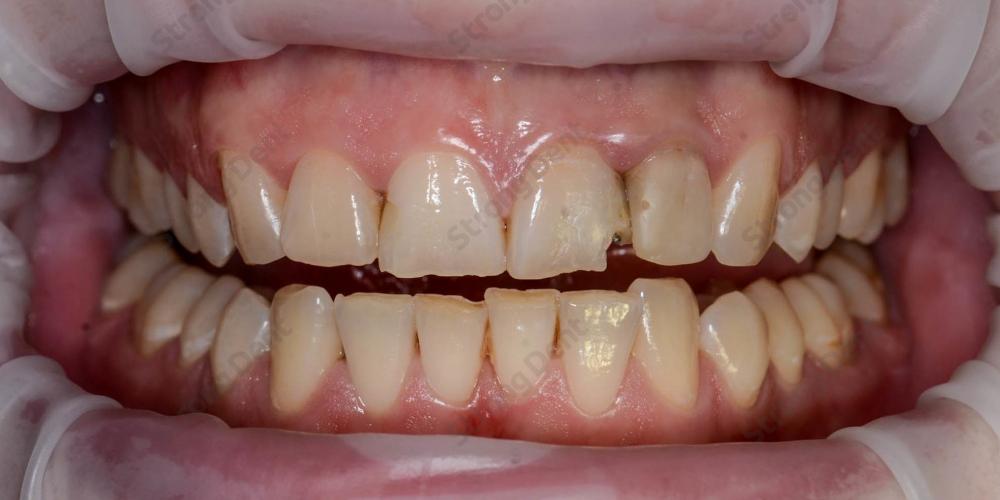 Результат установки высокоэстетичных виниров на передние зубы - фото №1