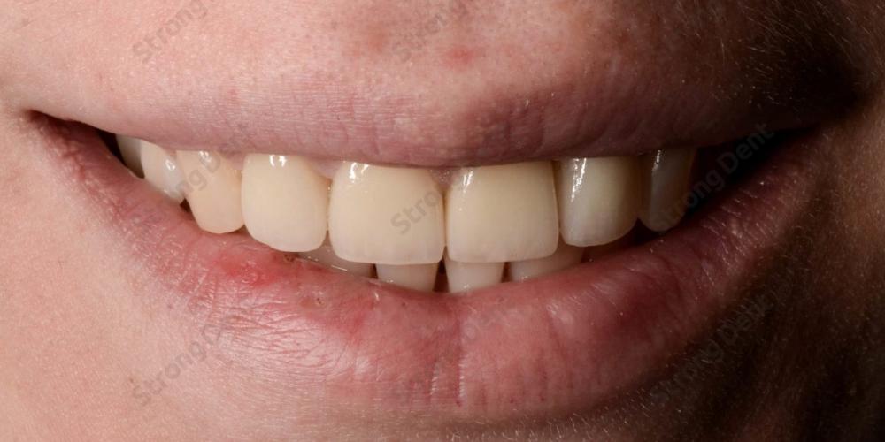 Результат установки высокоэстетичных виниров на передние зубы - фото №2