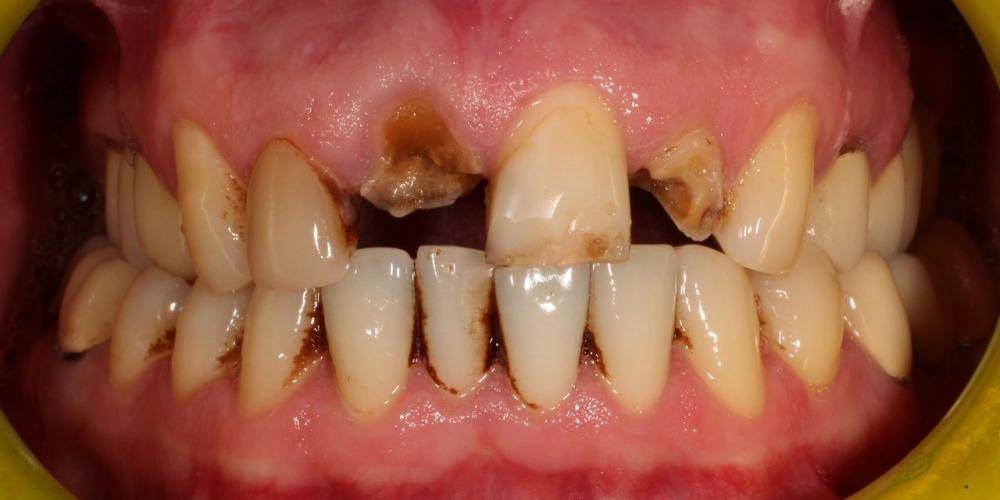 Протезирование передних зубов металлокерамикой - фото №1