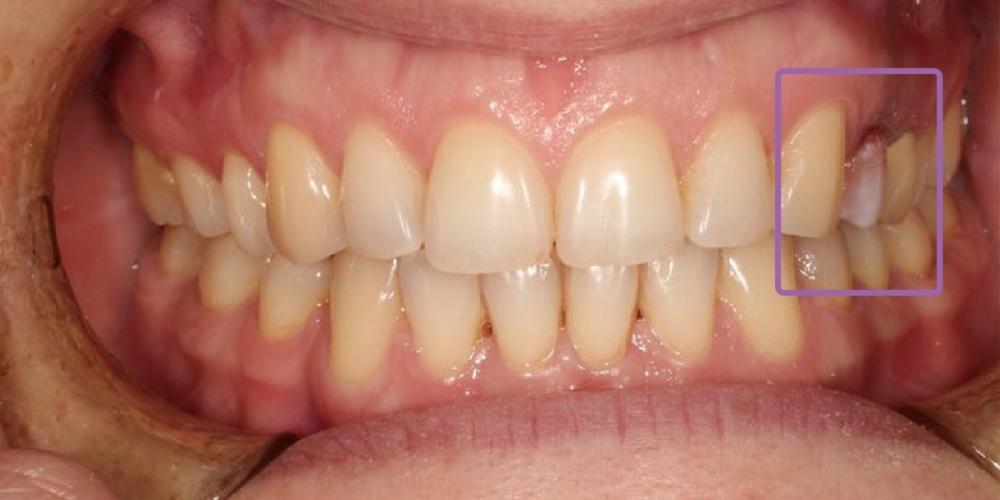 Резорцин-формалиновый зуб, решение проблемы с эстетикой - фото №1
