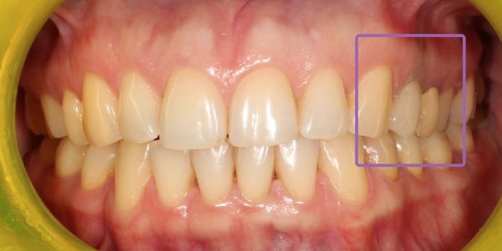 Резорцин-формалиновый зуб, решение проблемы с эстетикой - фото №2