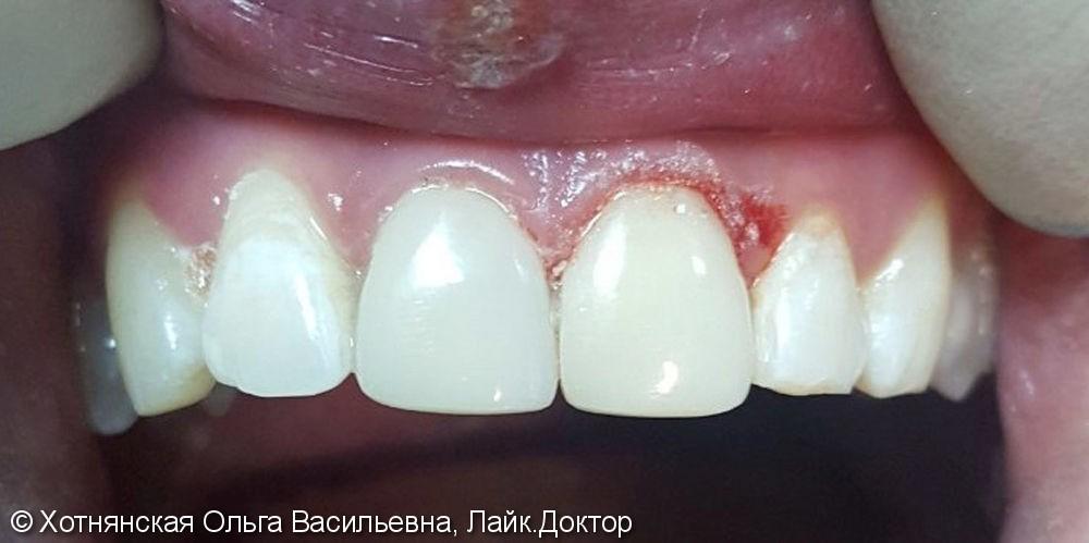 Результат эстетической реставрации центральных зубов за одно посещение - фото №2