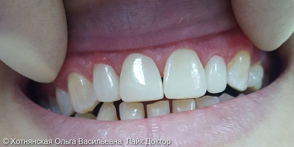 Расположение, цвет, пятна, диастема (щель между центральными зубами) - фото №2