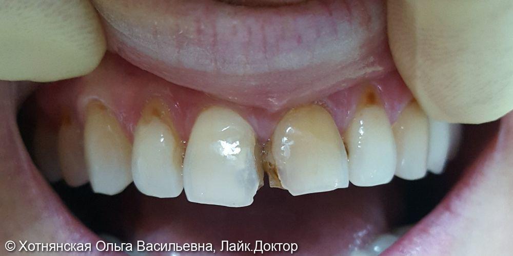 Реставрация 5-ти центральных зубов - фото №1
