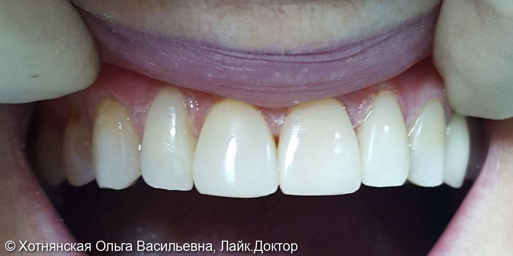 Реставрация 5-ти центральных зубов - фото №2