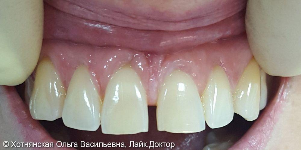 Устранена диастема (щель между зубами) путём эстетической реставрации 2-х центральных зубов - фото №1