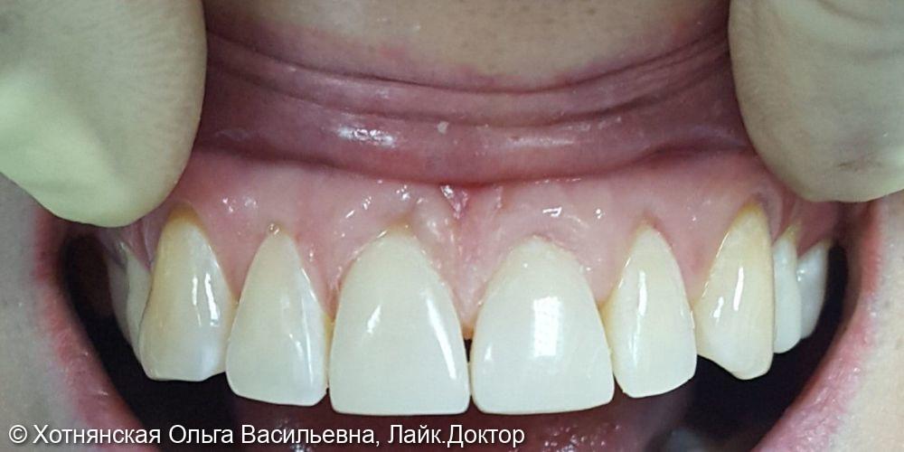 Устранена диастема (щель между зубами) путём эстетической реставрации 2-х центральных зубов - фото №2