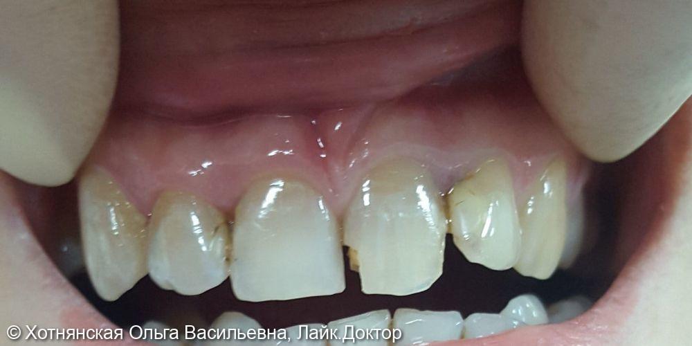 Эстетическая реставрация центральных зубов - фото №1
