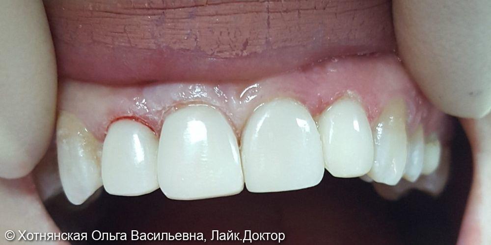 Эстетическая реставрация центральных зубов - фото №2