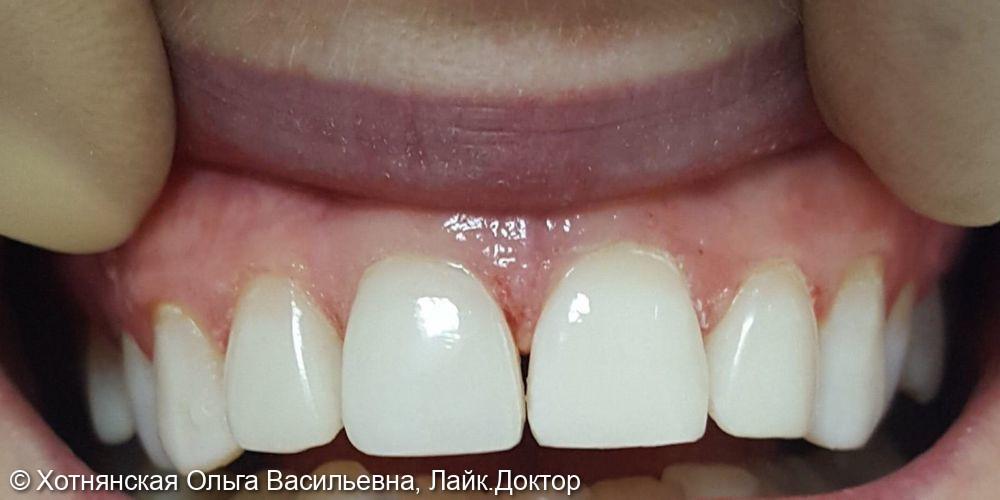 Реставрация 4-х центральных зубов - фото №2