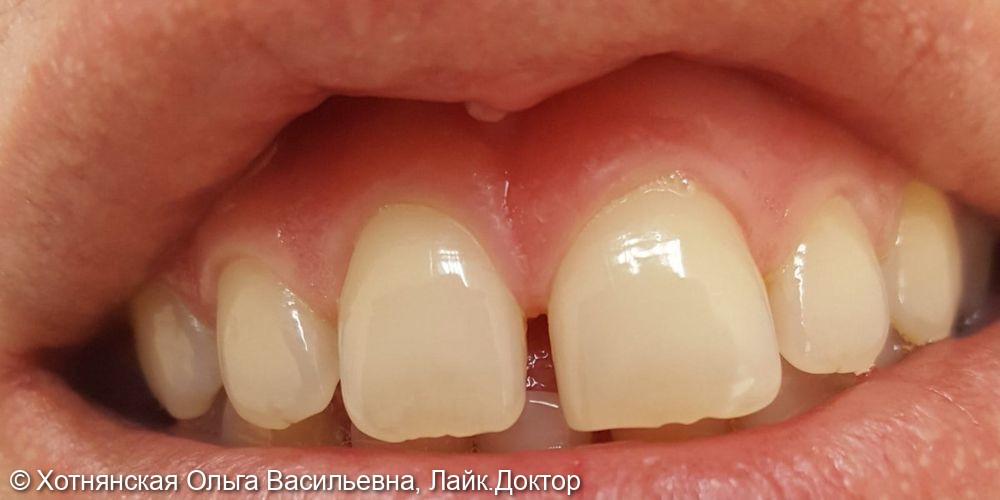 Реставрация центральных зубов - фото №1