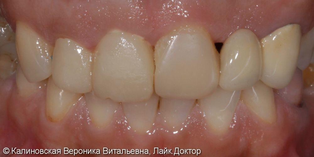 Восстановление зубов винирами Emax и отбеливание ZOOM 4 - фото №1