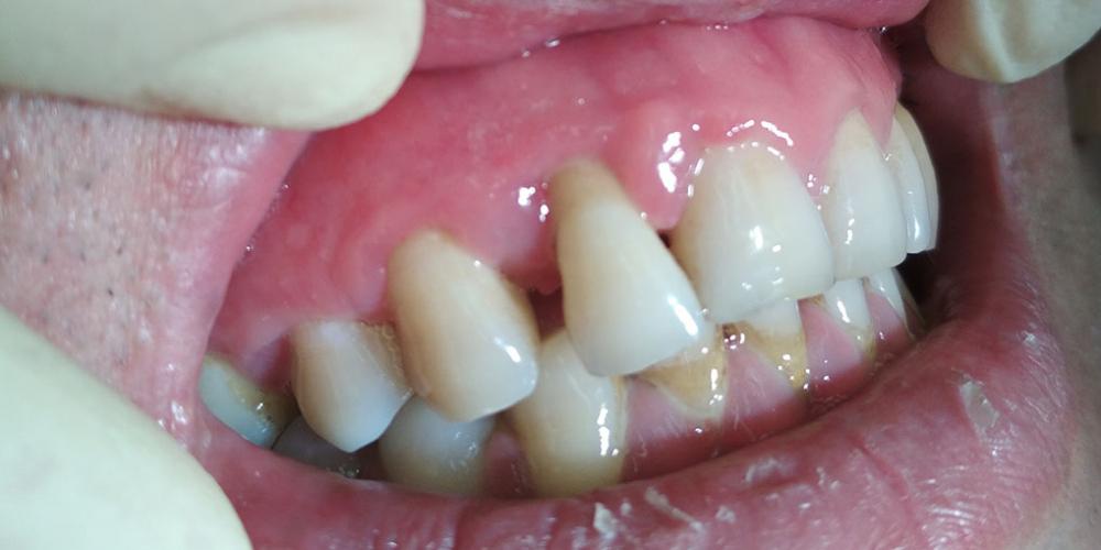 Лечить зубы после сотрясения