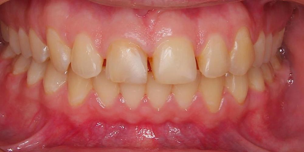 Преобразование улыбки керамическими винирами - фото №1