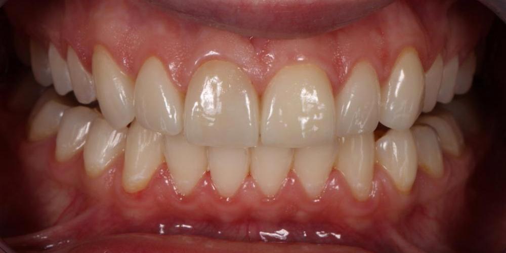 Преобразование улыбки керамическими винирами - фото №4