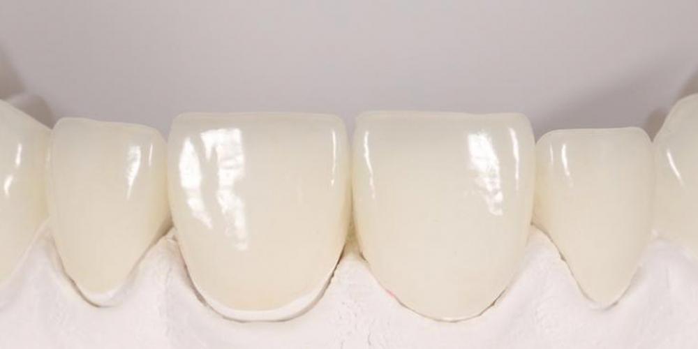 Преобразование улыбки керамическими винирами - фото №3
