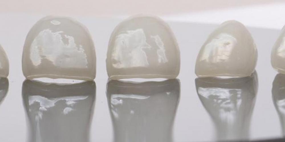 Преобразование улыбки керамическими винирами - фото №2