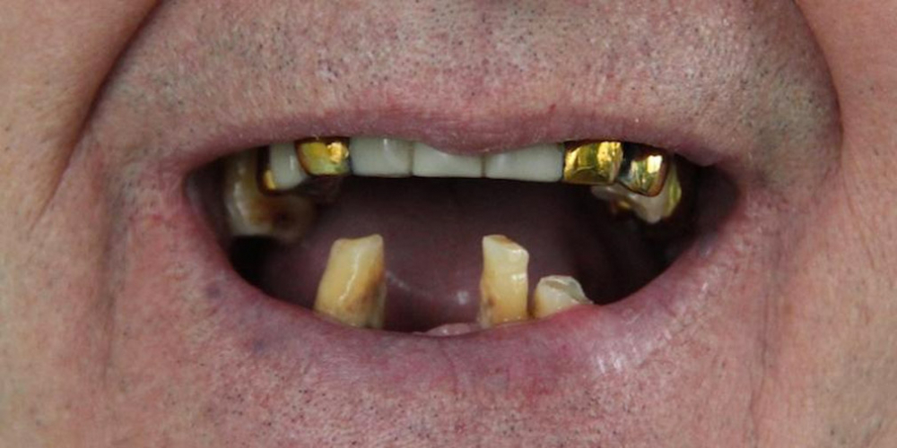 Одномоментная постановка 4 имплантатов, протезирование нижней челюсти - фото №1