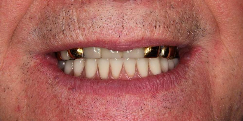 Одномоментная постановка 4 имплантатов, протезирование нижней челюсти - фото №10