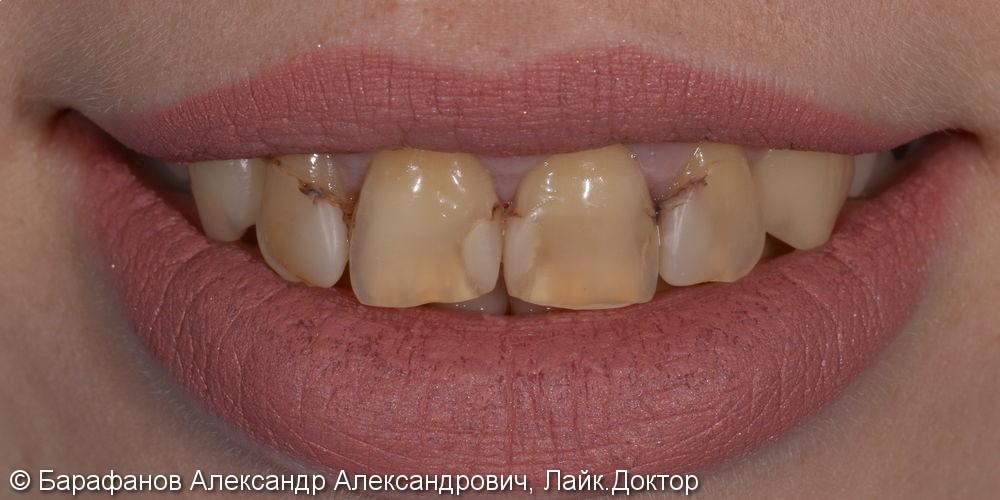 4 временные композитные коронки на передние зубы - фото №1