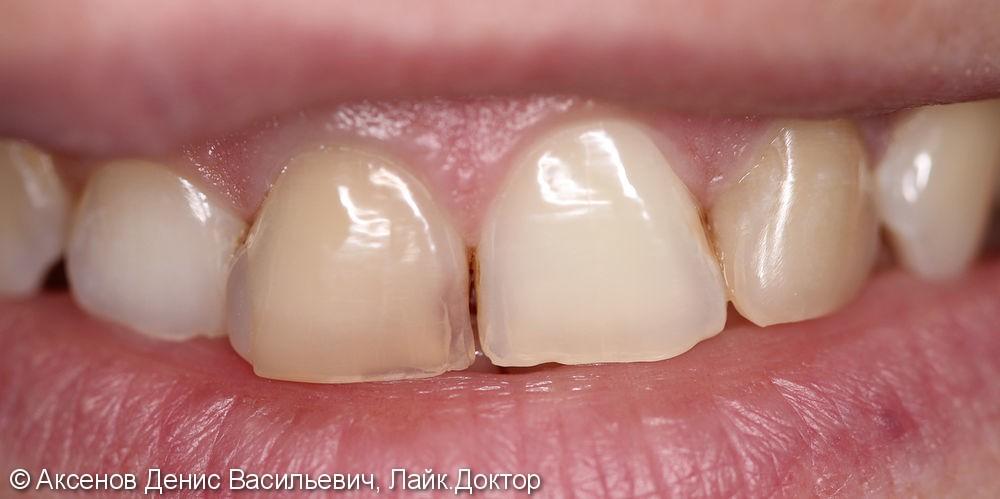 Внутриканальное отбеливание зуба - фото №1