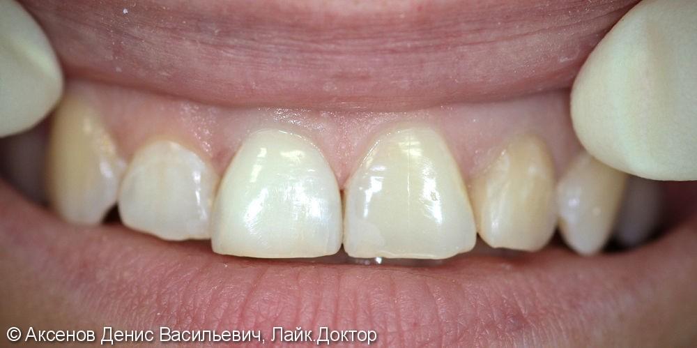 Внутриканальное отбеливание зуба - фото №2