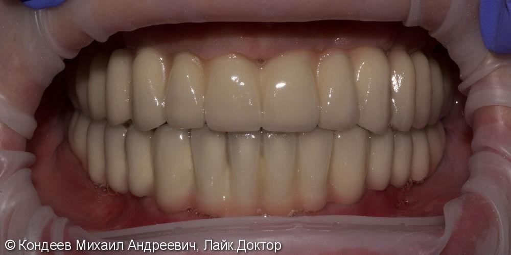 Восстановление зубного ряда нижней и верхней челюстях - фото №2