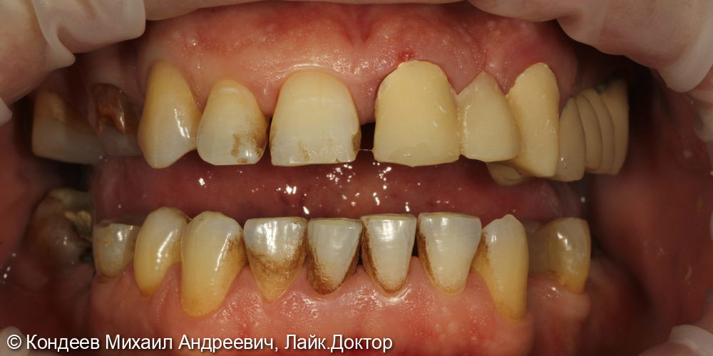 Восстановление зубного ряда - фото №1