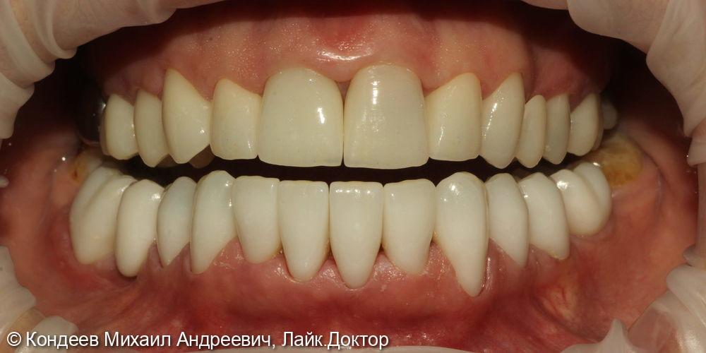 Восстановление зубного ряда - фото №2