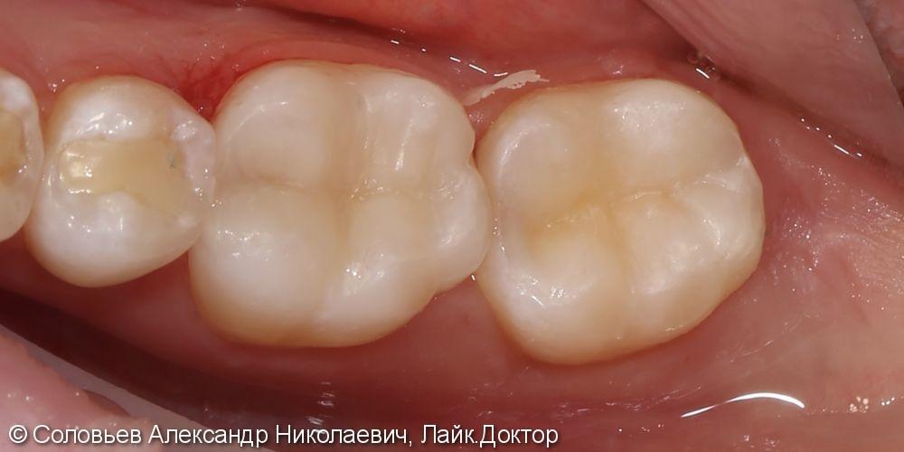 Лечение глубокого кариеса зубов 46 и 47 - фото №3