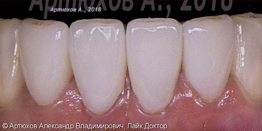 Высокопрочные фарфоровые виниры, до и после - фото №2