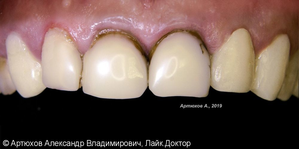 Металлокерамика на верхней челюсти - фото №1