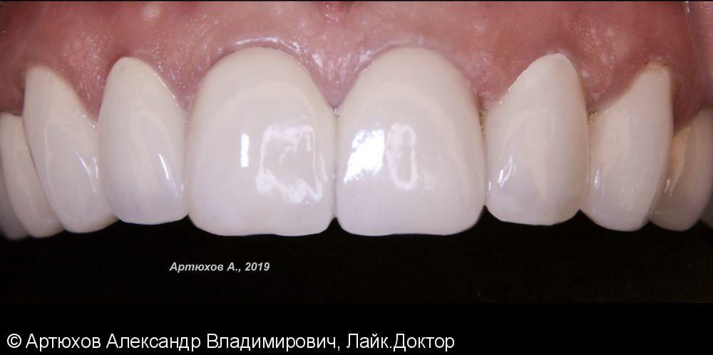 Металлокерамика на верхней челюсти - фото №2