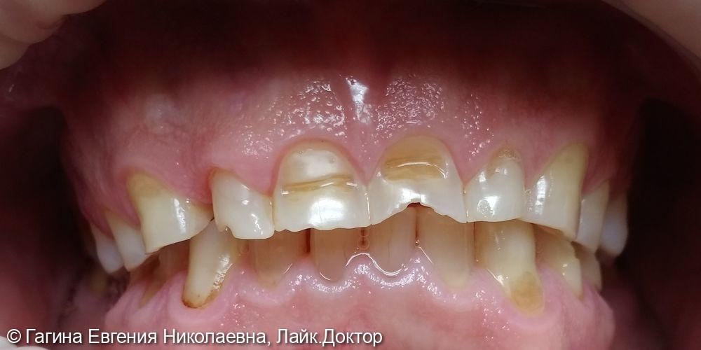 Лечение патологической стираемости зубов - фото №1