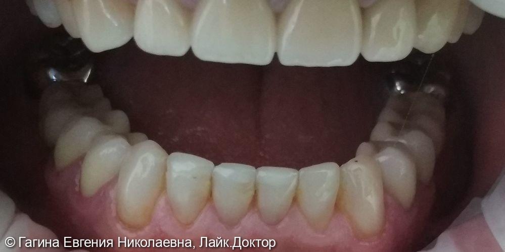 Лечение патологической стираемости зубов - фото №6