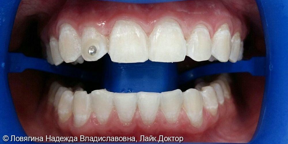 Отбеливание зубов системой Zoom 4! - фото №2