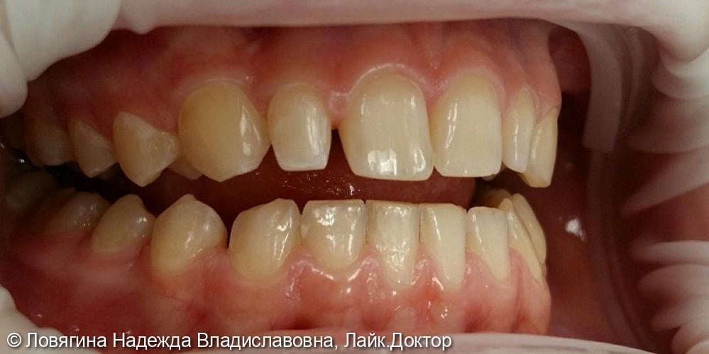 Реставрация зуба во фронтальном отделе верхней челюсти - фото №1